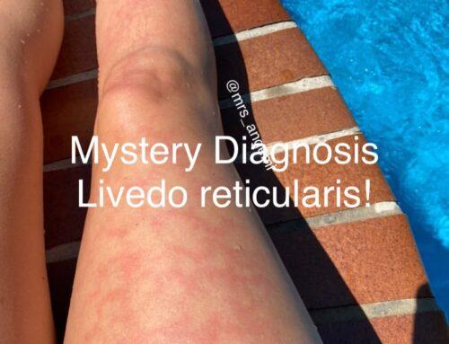 Mystery Diagnosis: Livedo reticularis