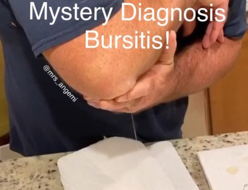 Mystery Diagnosis: Bursitis